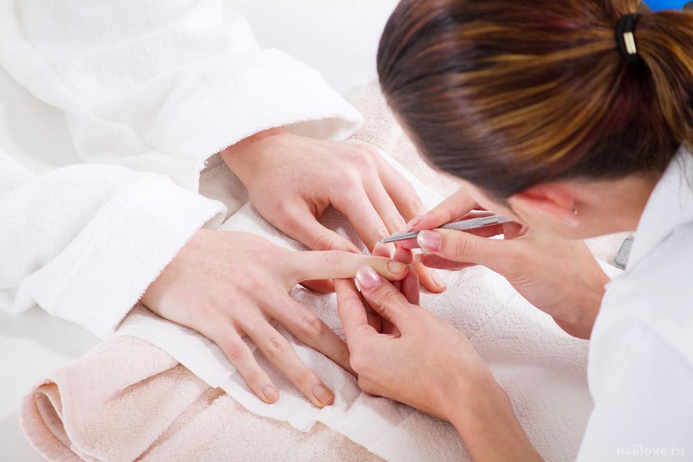 Как проводится ремонт ногтя?